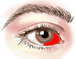 lasik-eye-surgery-recovery_subconj-hemorrhage